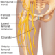 neuropathies about the hip